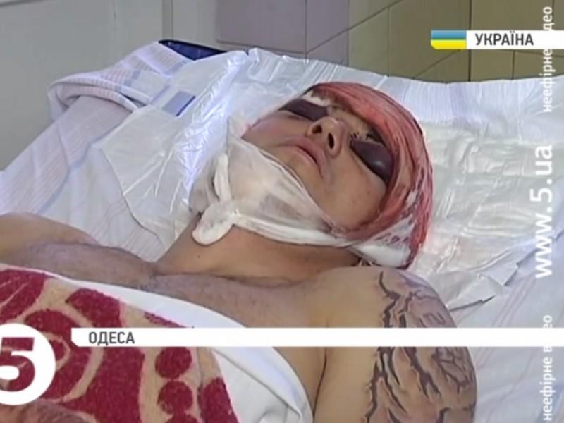 В Одессе жестоко избили волонтера