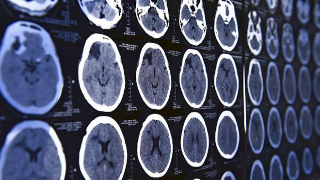 В Индии 9-летняя девочка играла в видеоигры  во время операции на мозге (ВИДЕО)