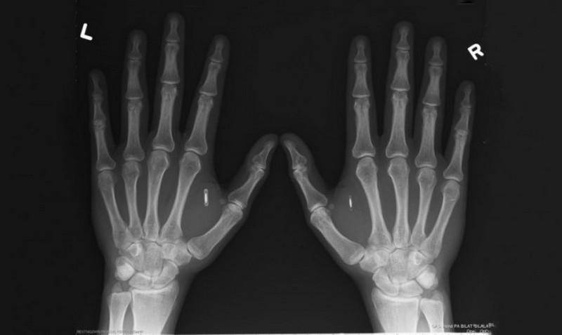 Первому украинцу имплантировали компьютерный чип в руку