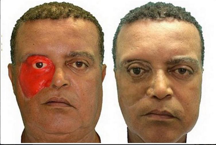 Технологии в помощь: с помощью 3D-печати изготовлен первый протез лица