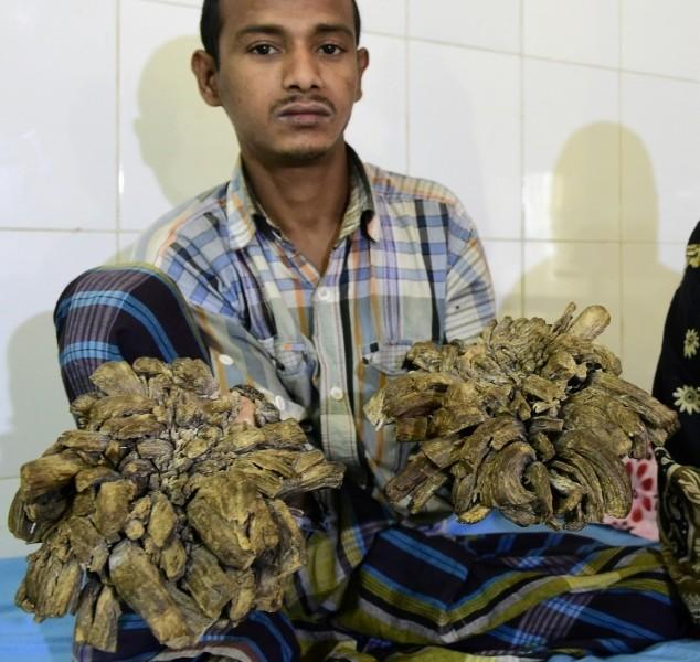 «Человек-дерево» из Бангладеш перенес 16 операций, чтобы избавиться от своих жутких наростов