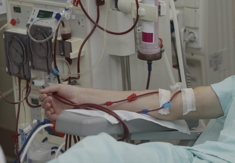 В Николаеве врачи отделения гемодиализа требуют отделить их от областной больницы в самостоятельное КНП