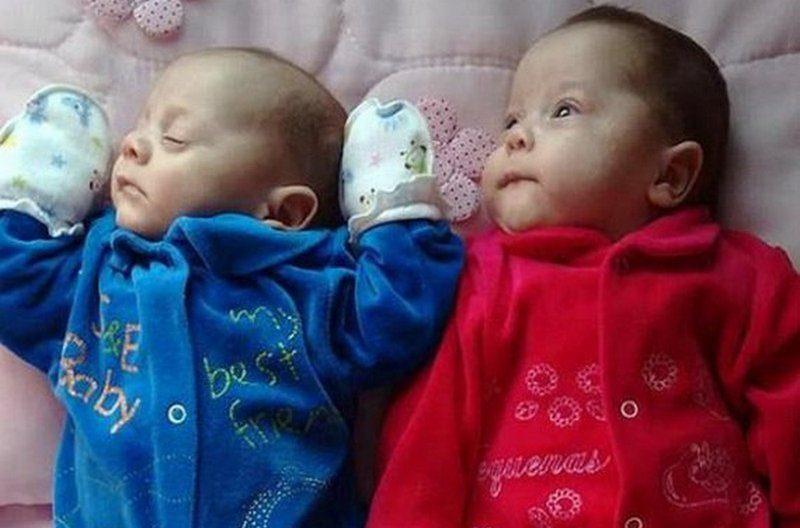В мире фиксируется пик рождаемости близнецов