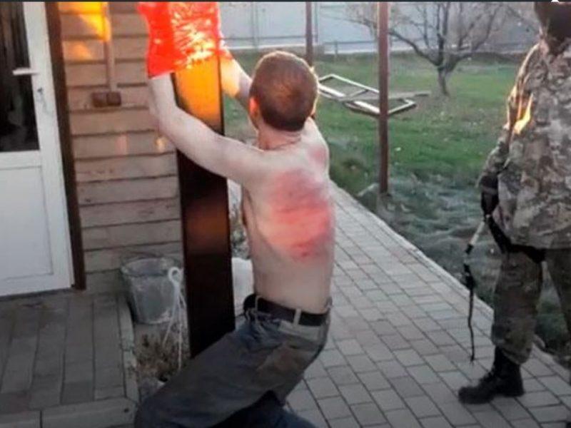 Пытки на Донбассе. Снимали кожу, скальп, кастрировали и распинали на кресте