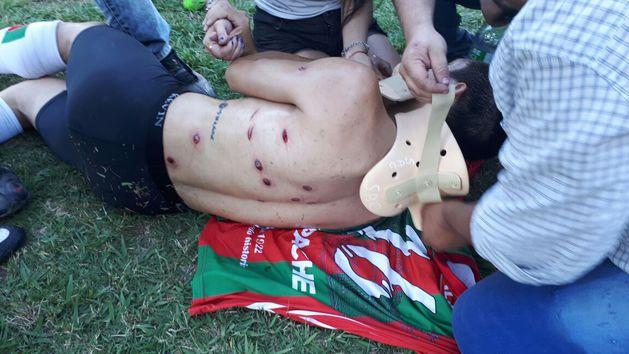 В Аргентине полиция изрешетила резиновыми пулями футболистов и болельщиков. Одному выбили глаз
