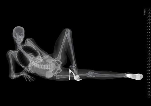 Эротический скелет. Японцы выпустили необычный календарь в стиле рентгеновских снимков