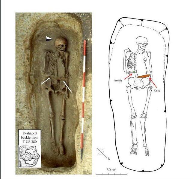 Почти «Эдвард руки-ножницы»: на раскопках в Италии нашли останки мужчины с протезом в виде ножа