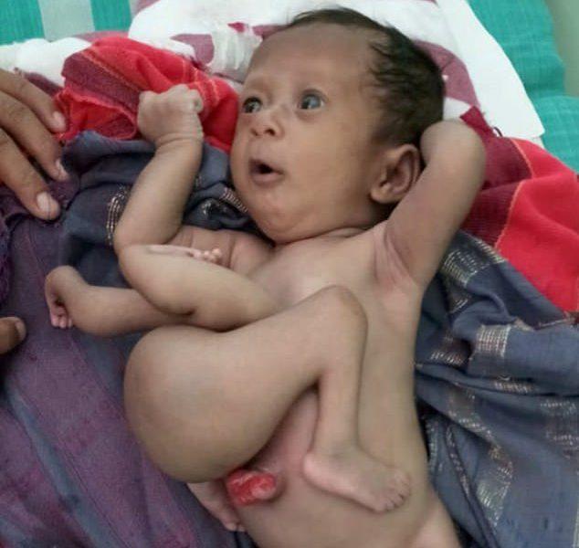 В Индии спасли ребенка, родившегося с паразитическим близнецом в теле