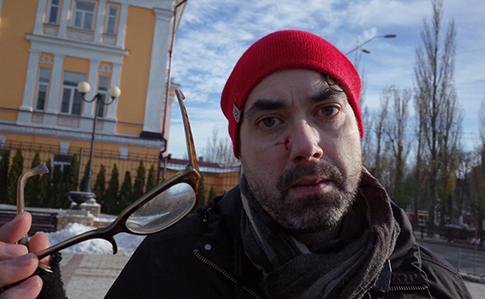 Из-за нападения на канадского фотографа в Киеве открыто производство