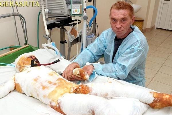 На Николаевщине родители бросили в больнице обожженого сына, который чудом выжил после удара током