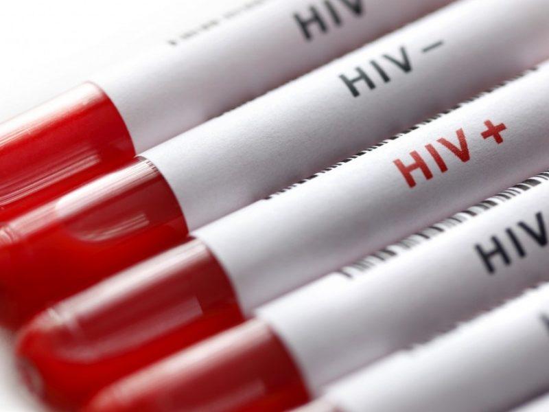 В Николаевской области потратили 48,9 тыс. грн на тесты ВИЧ (ИНФОГРАФИКА)
