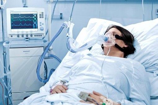 Аппараты ИВЛ не спасают, не хватает кислородных масок, — николаевский врач-реаниматолог