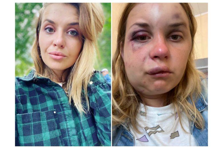 Мужчина избил и пытался изнасиловать пассажирку поезда «Мариуполь – Киев» (ФОТО, ВИДЕО)