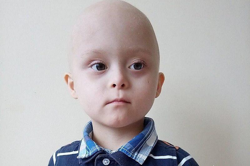 Маленькому николаевцу нужна помощь в борьбе с тяжелой болезнью