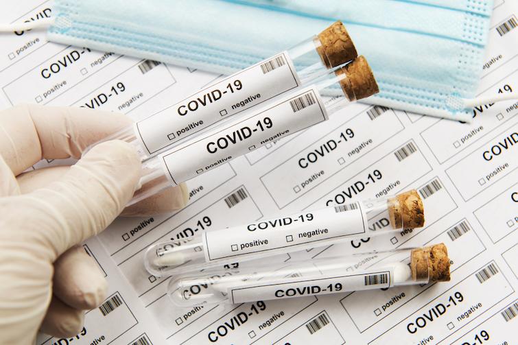 В Британии разработали экспресс-тест на коронавирус – выдает результат через 5 минут