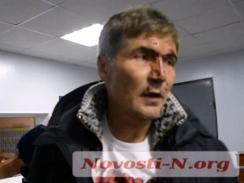 В Николаеве патрульные задержали экс-нардепа Жолобецкого. У него разбито лицо (ВИДЕО)