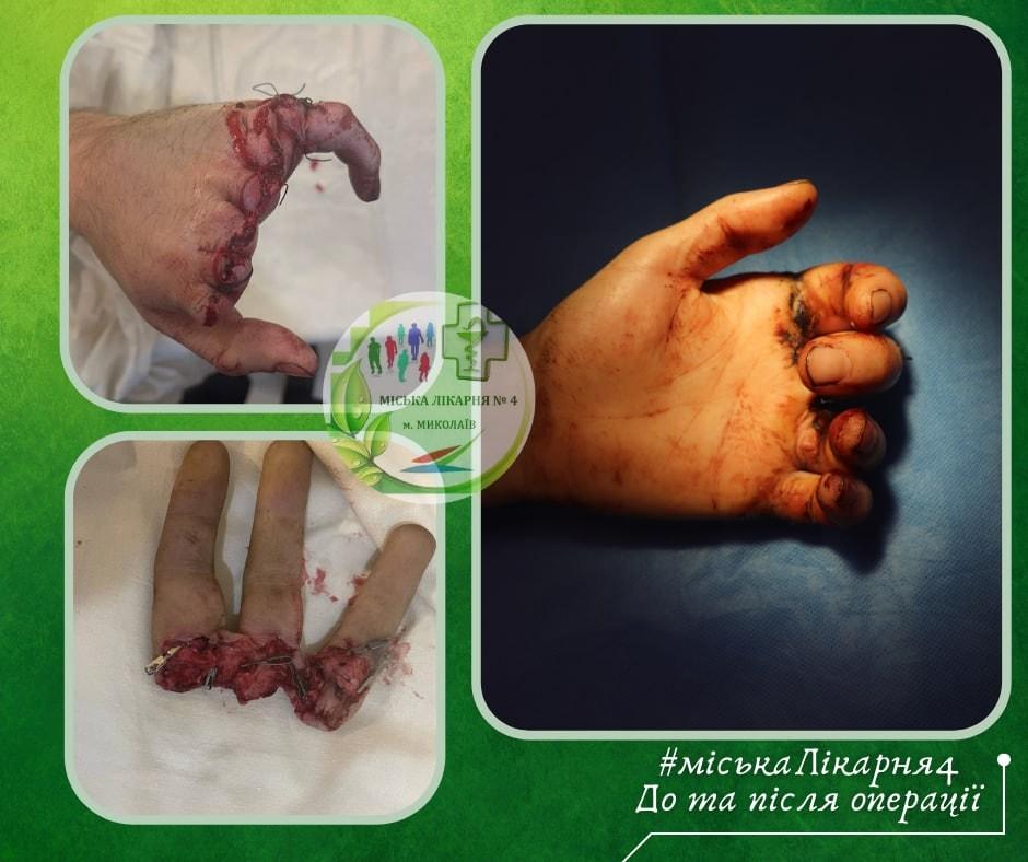 В Николаеве врачи пришили мужчине отрезанные пальцы (ФОТО) 1