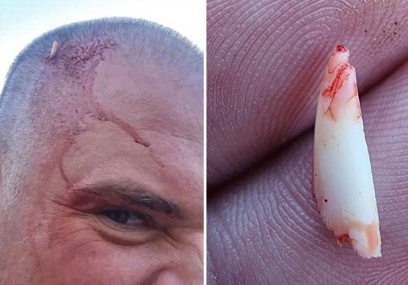 Акула сломала зуб об голову мужчины, пытаясь укусить его