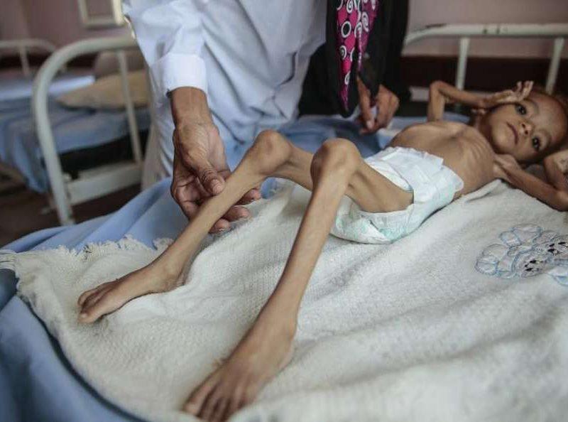 Количество голодающих в мире достигло пятилетнего максимума – ООН