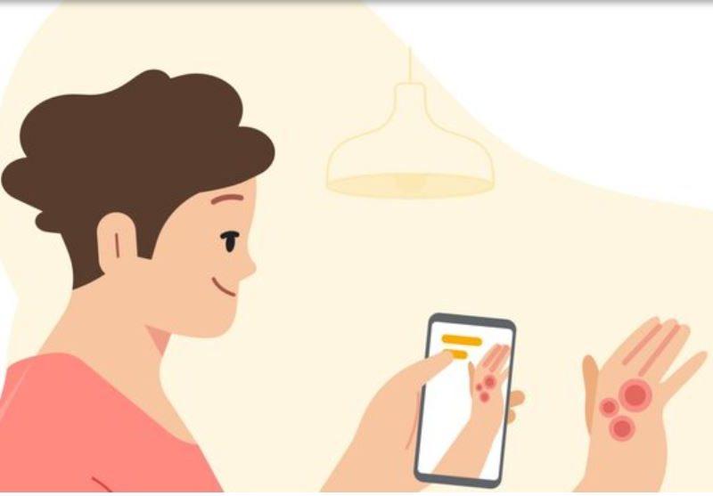 Специальное приложение Google поможет распознать заболевания кожи