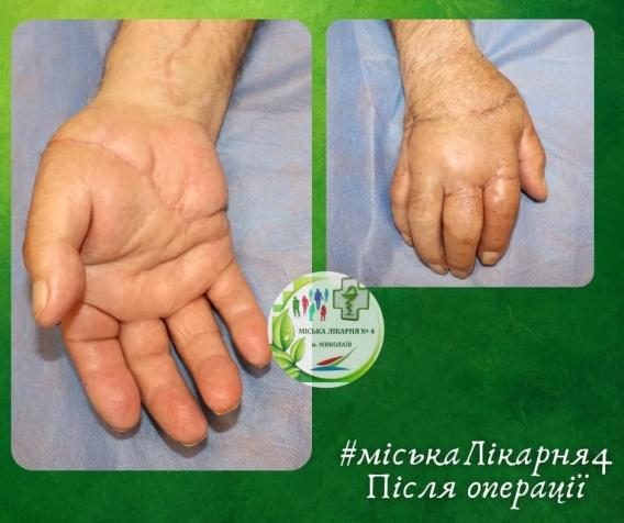 Николаевские хирурги за 9 часов пришили мужчине отрезанную руку (ФОТО) 5