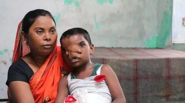 """В Индии девочку с """"хоботом"""" признали воплощением божества 3"""