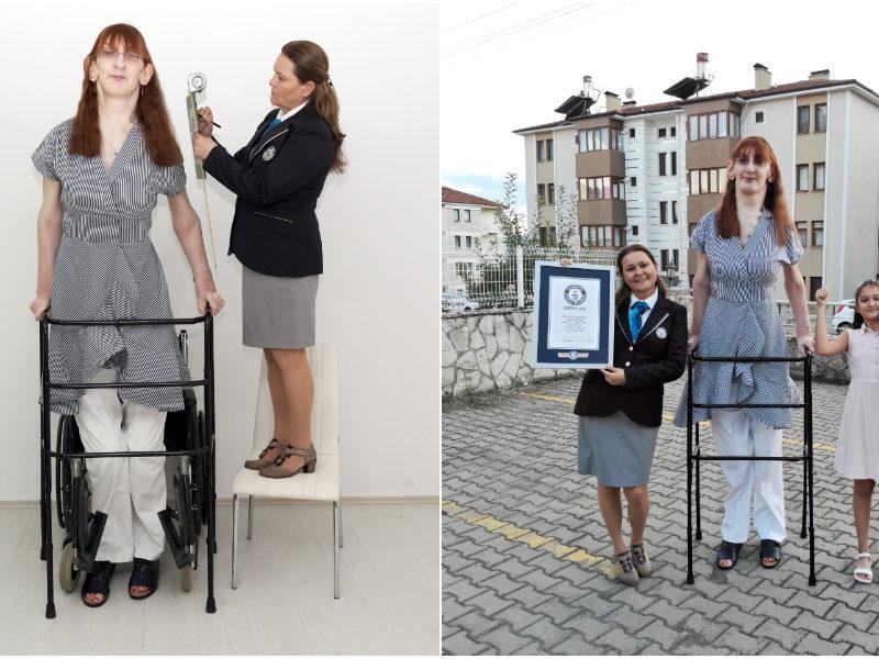 Самой высокой в мире женщиной стала турчанка. Ее рост — 215 см (ФОТО, ВИДЕО)